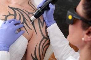 Ein schönes Hautbild durch Laserbehandlungen