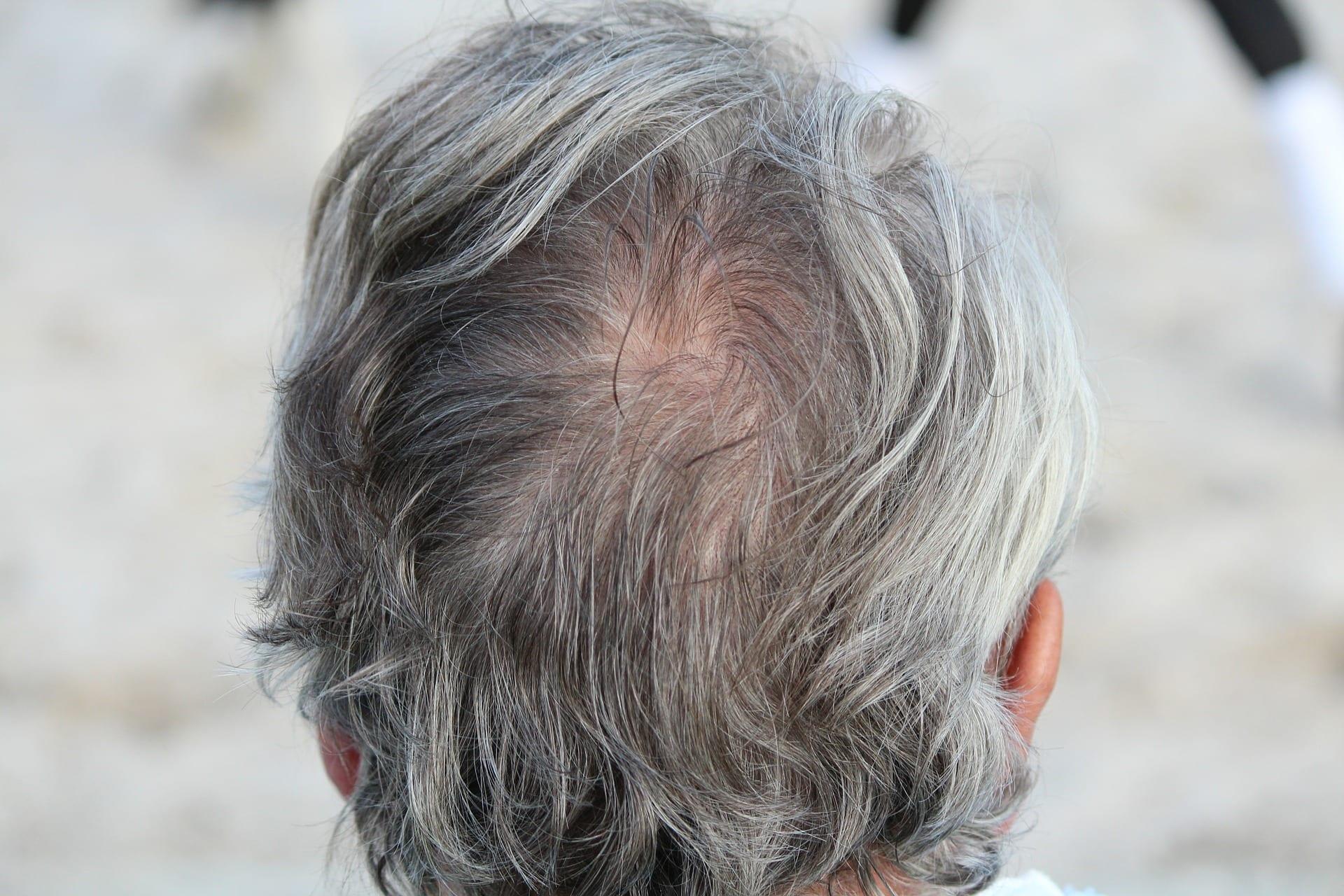 Schönheitsmakel? Die Arten von Haarausfall